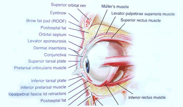 Лазерные процедуры от мешков под глазами