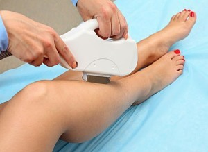 Процедура эпиляции диодным лазером
