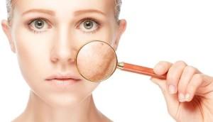 Косметологическое лечение пигментных нарушений кожи