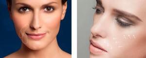 Липофилинг носогубных складок в клинике Gold Laser