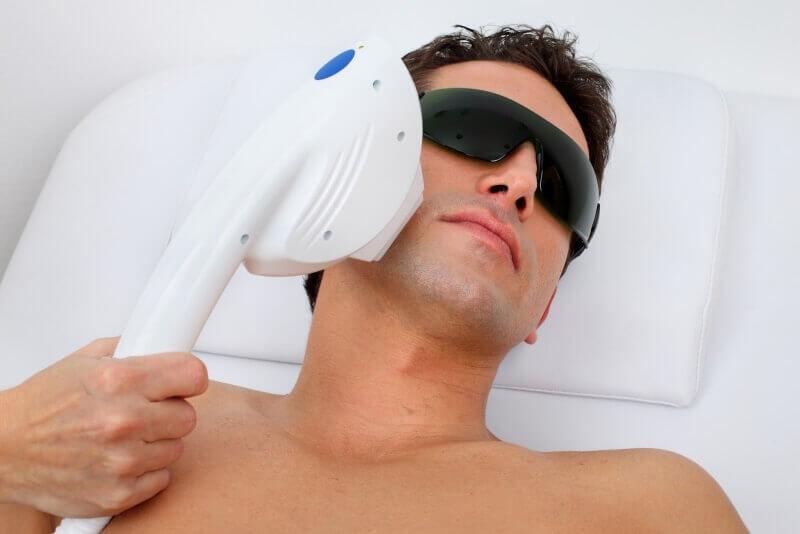 Лазерная эпиляция лица для мужчин в клинике Gold Laser