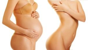 Восстановление живота после родов