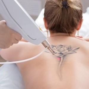 Удаление татуировок в GoldLaser