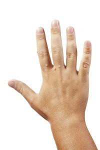 Бородавки на руках