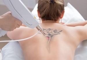 Лазерное удаление татуировки